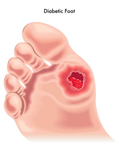 Diabetic Foot Complications
