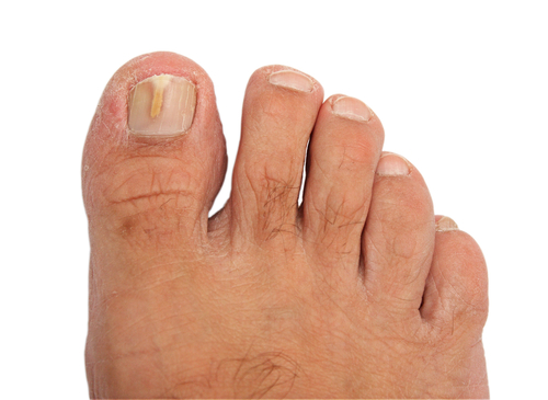 Fungal Thickened Nails